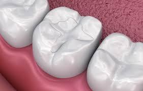 Fyllin i tann