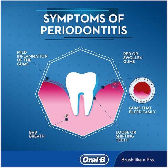 periodontitt